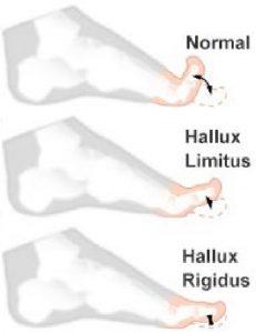 hallux-limitus-rigidus